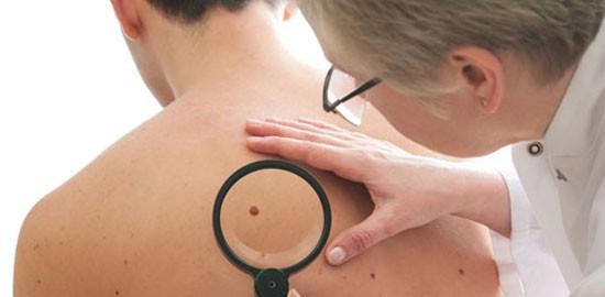 skin-cancer-management-1-550x270
