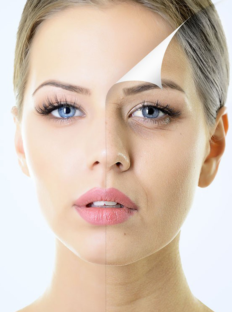 Cosmetic Facial Peels