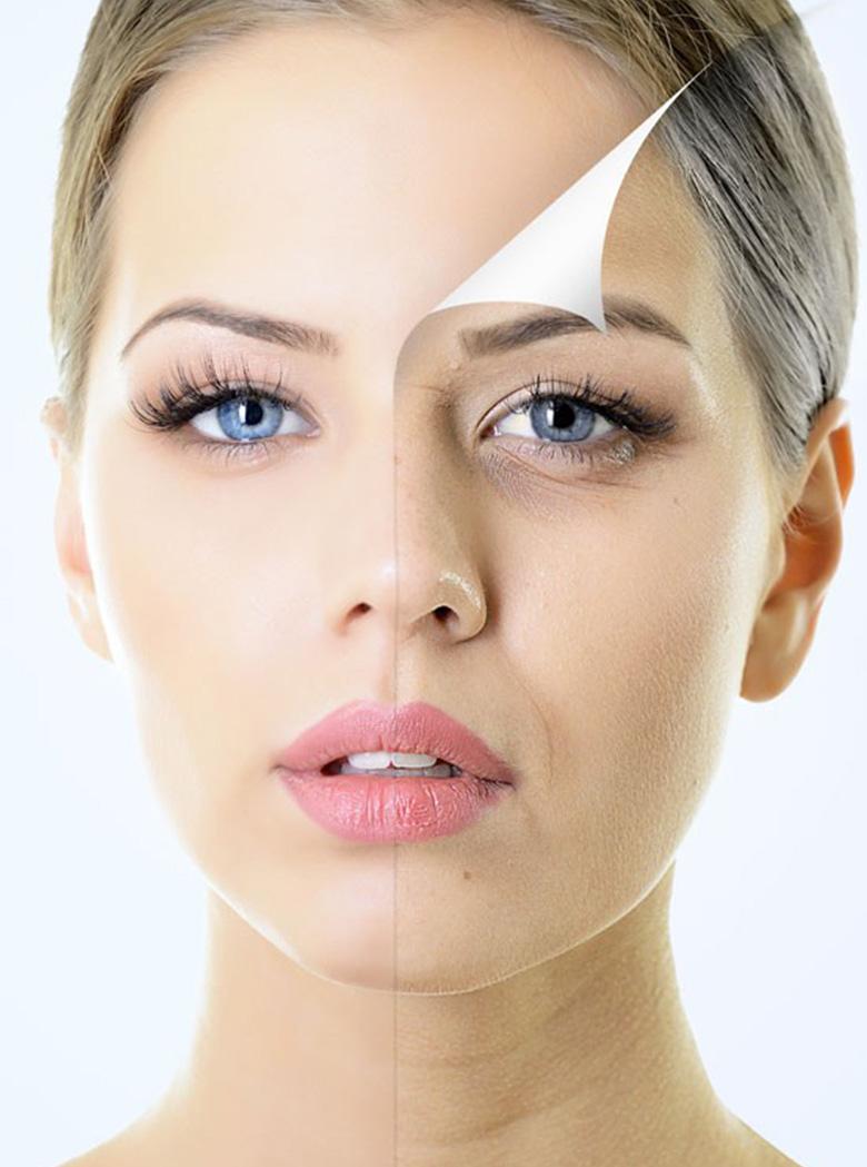 Cosmetic Facial Peels