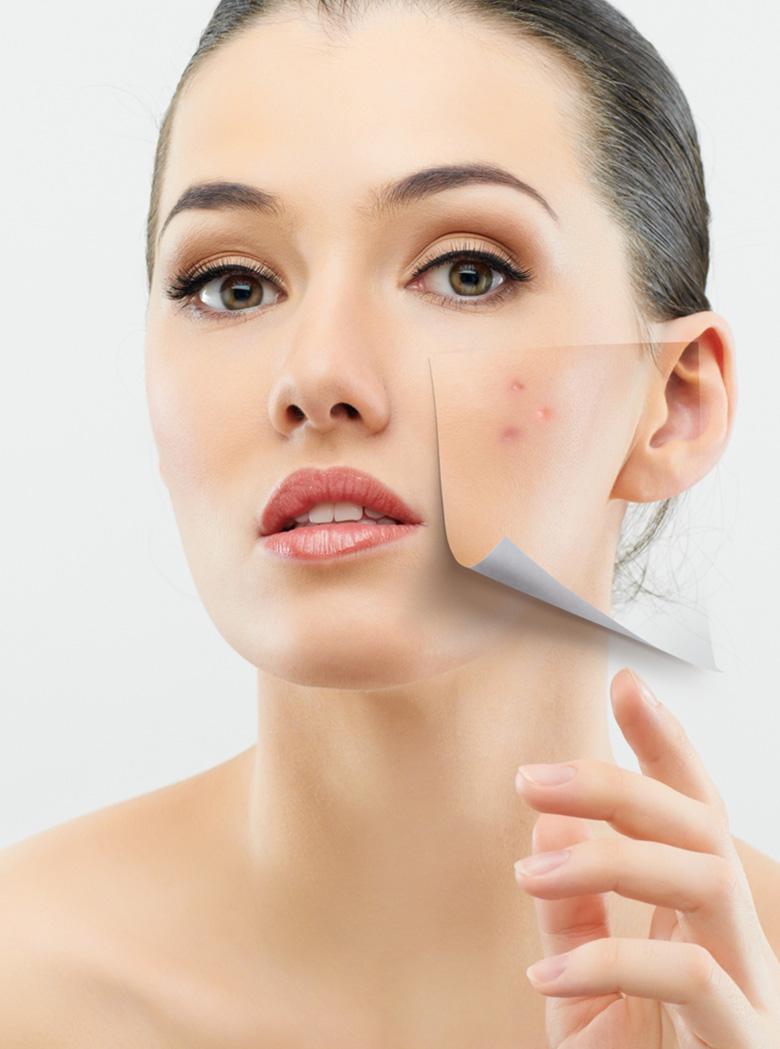 Cosmetic Skin Resurfacing